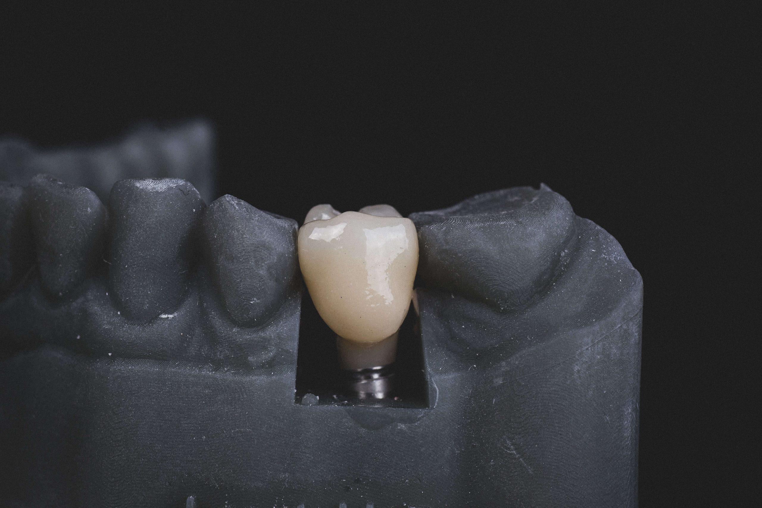 Ile Kosztują Implanty Zębów